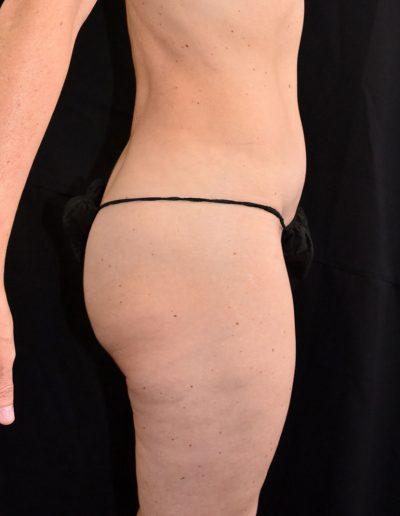 Butt Inplant - Before