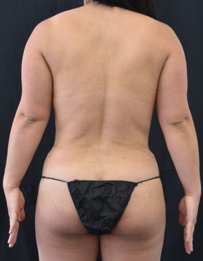 Liposuction - After