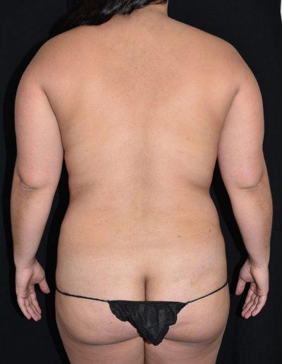 Liposuction - Before