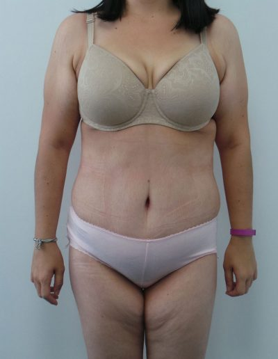 Tummy Tuck 1 - After