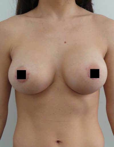 Breast Augmentation 1 - After