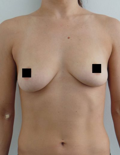 Breast Augmentation 1 - Before