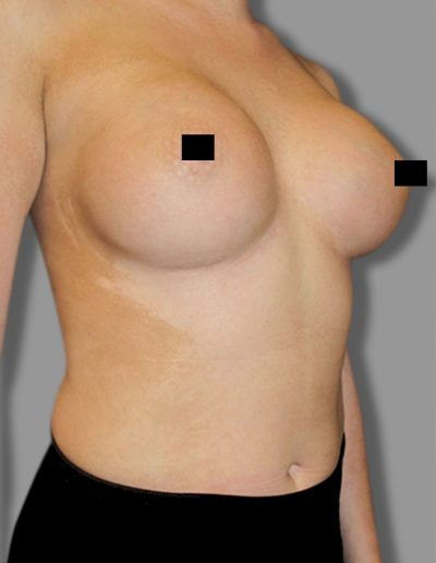 Breast Augmentation 3 - After