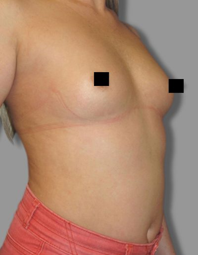 Breast Augmentation 3 - Before