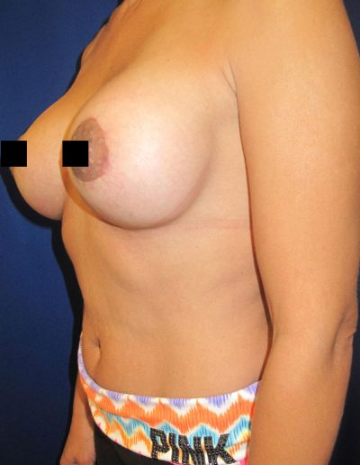 Breast Augmentation 4 - After