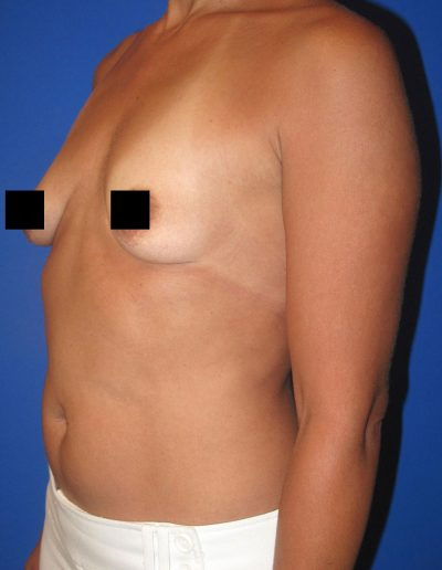 Breast Augmentation 4 - Before