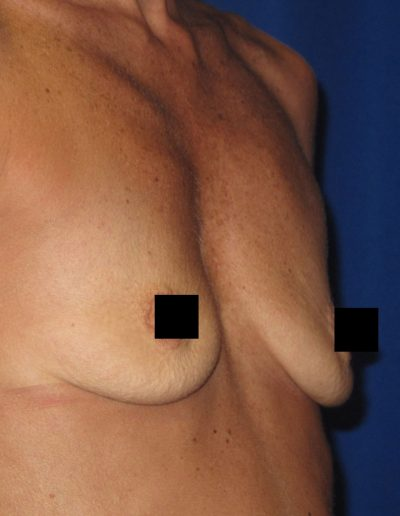 Breast Augmentation 2 - Before