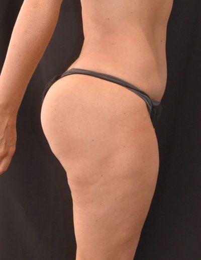Butt Inplant - After