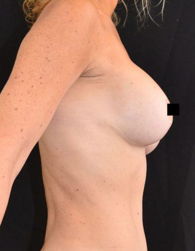 Implant Exchange - Before
