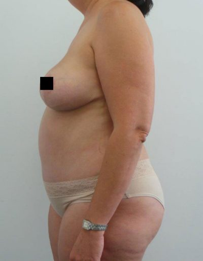 Tummy Tuck 2 - After