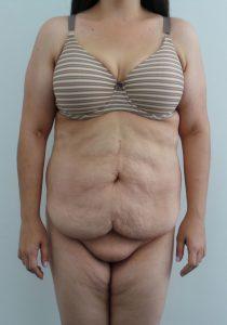 Tummy Tuck 1 - Before