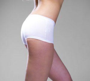 Brazilian Butt Lift Vs. Buttocks Implants