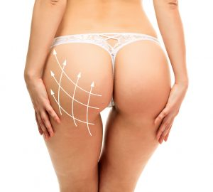 Procedures Brazilian Butt Lift