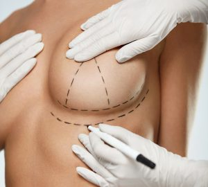 What You Should Know About Life With Breast Implants
